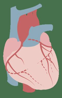 DrCH icon coronary colour