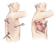 Minimally invasive pulmonary resectxion